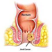cancer anal.jpg