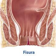fisura anal.jpg