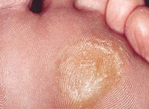 get-rid-of-calluses-on-feet-fast.jpg