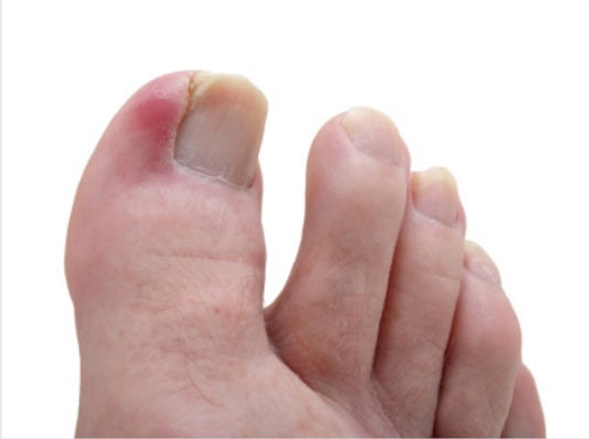 ingrown toe nail.jpeg