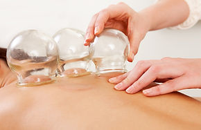 Cupping-therapy.jpeg