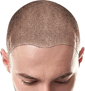 uokpl.rs-men-hair-wig-png-4955908.png