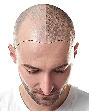 SMP_ManBeforeAfter_Scalp.png