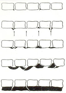 Tysk spondylose.jpg