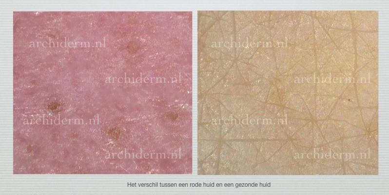 rode huid, gezonde huid, dermaviduals resultaat