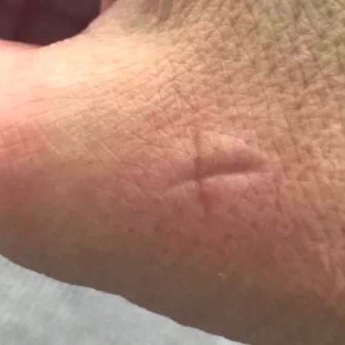 kruisje tegen jeuk bij muggenbijt of eikenprocessierups