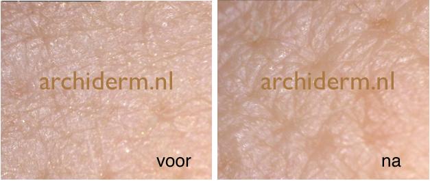 voor- en na-foto van de huid