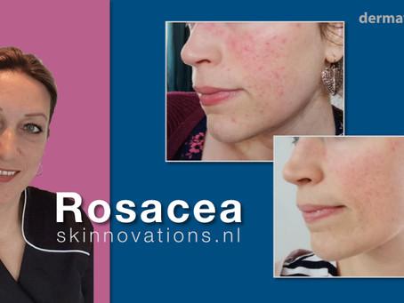 De grootste fout bij rosacea is dat je de huid met te weinig of zelfs geen vet verzorgt!