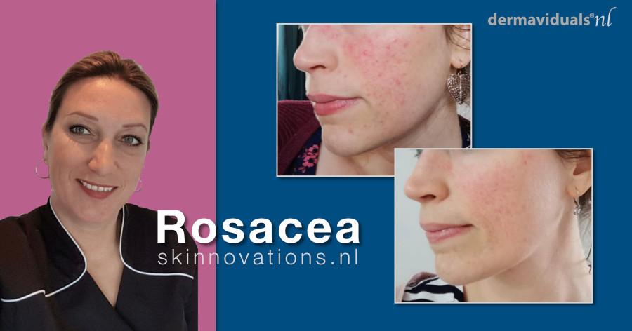 een huid met rosacea, rosacea behandeling, resultaat van een rosacea behandeling