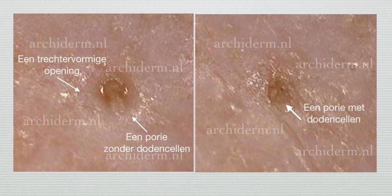 porie met dodencellen, porie zonder dodencellen, een  trechtervormige opening van porie.