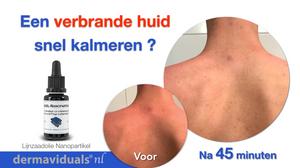 Lijnzaadolie Nanopartikel, een verbrande huid.