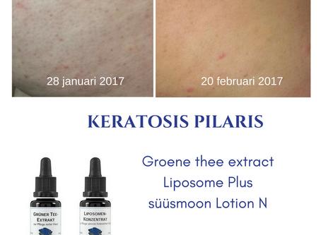 Keratosis Pilaris: een mooi resultaat!