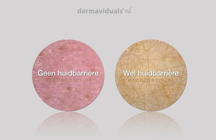 huid zonder de huidbarrière, rode huid, Een huid met de huidbarrière.