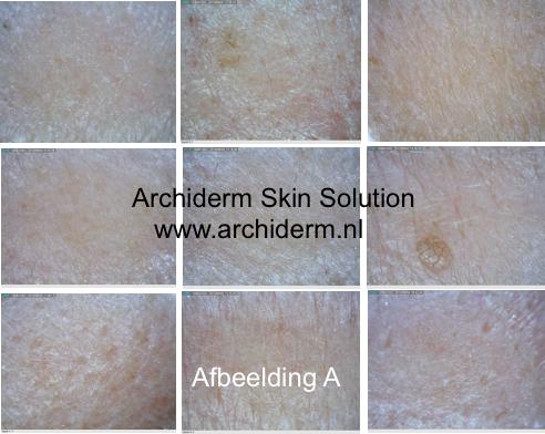 huidproblemen, huidanalyse
