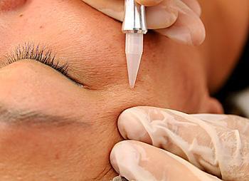 Micropuntura Facial e Estrias