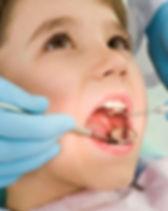 dental, teeth, child, healthy