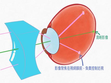 認識近視 (3)