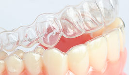 alinhadores ortodonticos esteti-align