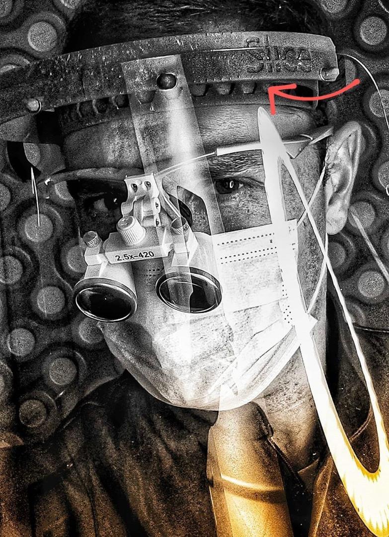 Protetor Facial para dentistas by SliceLab