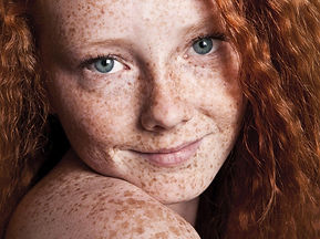 pigmentation skincare treatments dannylee aesthetics cannock west midlands