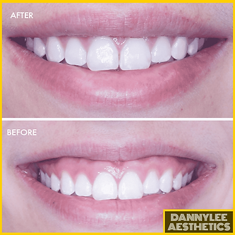 DANNYLEE Aesthetics Gummy Smile