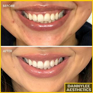Gummy Smile - DANNYLEE Aesthetics