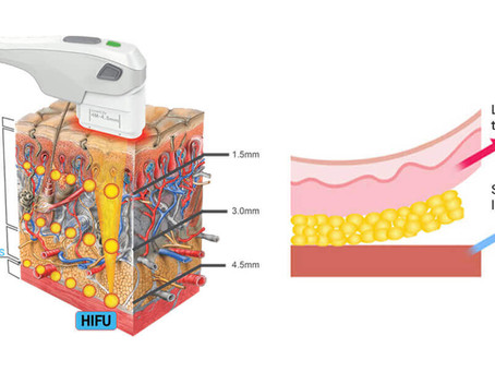 High Intensity Focused Ultrasound (HIFU, for short)