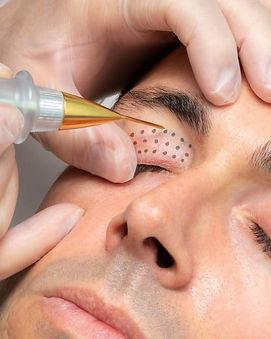 plasma pen treatment at DANNYLEE Aesthetics