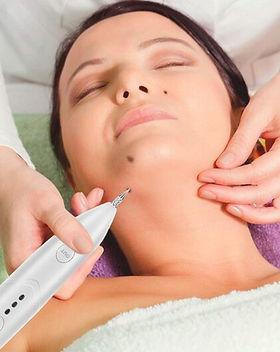 DANNYLEE Aesthetics | Skin Tag Removal | Wart Removal | Plasma Pen | Fibroblast | West Midlands | Cannock