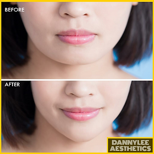 DANNYLEE Facial Slimming