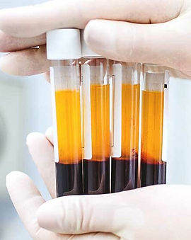 DANNYLEE Aesthetics | PRP | Plasma Rich Protein | West Midlands | Cannock | Staffordshire | Birmingham