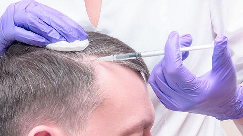 DANNYLEE Aesthetics | PRP | Vampire Facial | Hair Transplant | Hair Restoration