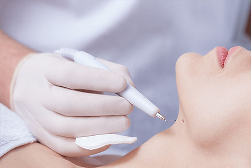 DANNYLEE Aesthetics | Skin Tag Removal | Wart Removal | Birmingham |