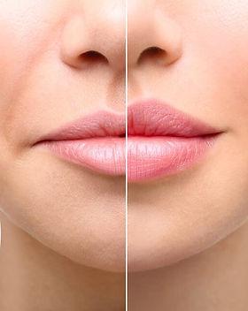 DANNYLEE Aesthetics | Lip Filler | Lip Augmentation | Russian Lips | Cannock | Stafford | Staffordshire