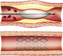 Percutaneous Coronary Intervention.png