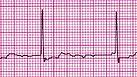 atrial-fibrillation.jpg