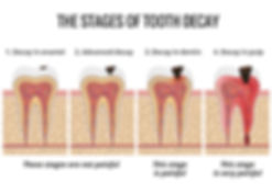 tooth-decay-stages-1030x737.jpg