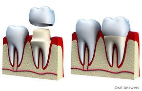 dental_crown_procedure_what_is_a_crown_c