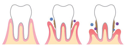parodontitis.jpg