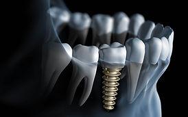 dental-implants1.jpg