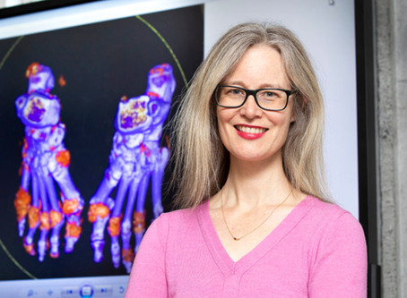 Could a simple supplement help delay osteoporosis?