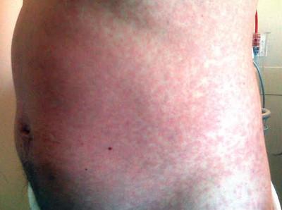 Morning report pearls: Maculopapular rash and DRESS