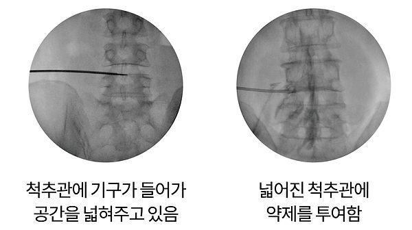 추간공 확장술-05.jpg
