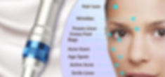 le-meilleur-microneedling-pen-derma-styl