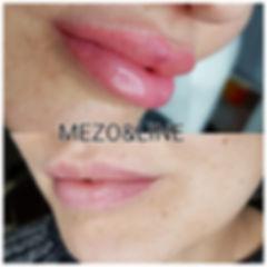 Maquillage permanent lèvres Montpellier
