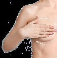 BreastProcedures.png