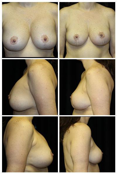 #53558 Implant Removal.jpg