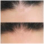 Micropigmentação Vitiligo