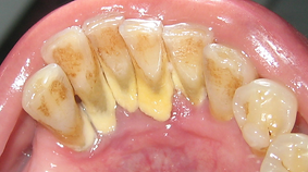 Dental Calculus.png