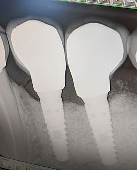 dental implant2.jpg